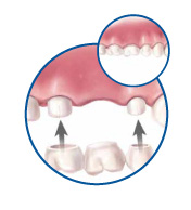 smiledentalgrp bridge and crown