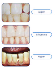 smiledentalgrp stages of plaque accumulation
