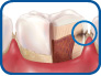 smiledentalgrp stage 3 of tooth decay