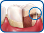smiledentalgrp stage 4 of tooth decay